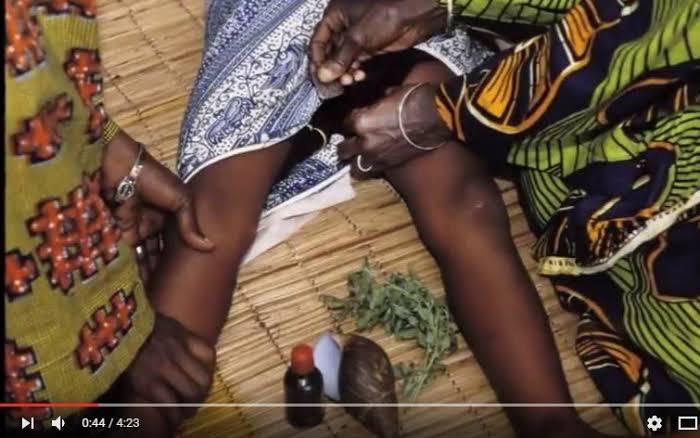 6 Fevrier : Les Mutilations Génitales Féminines, une autre forme de violences faites à la femme